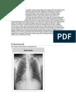 Dekstrokardia Dekstrokardia merupakan anomali posisi jantung.docx
