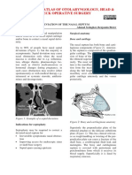 Septoplasty.pdf