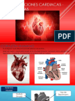 Palpitaciones Cardiacas -Arritmias