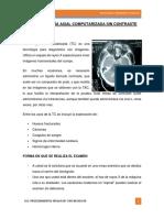La Tomografía Axial Computarizada