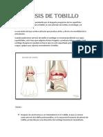 Artrosis-de-tobillo-1 (1)