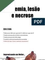 ECG Isquemia, Lesão e Necrose