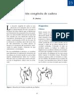 Luxación congénita de cadera.pdf