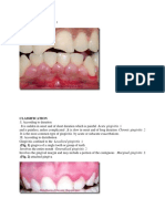 Gingival Inflammation