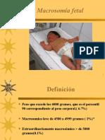 Macrosomía Fetal