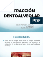 -EXTRACCION DENTOALVEOLAR-