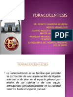 Toracocentesis Dr Casanova 100802201527 Phpapp01
