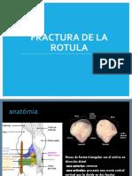 Fracturas de Rodilla