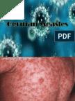 German Measles J