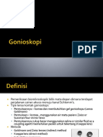 Gonioskopi