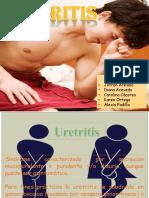 uretritis-2