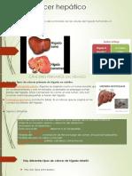 Cáncer-hepático-2.7