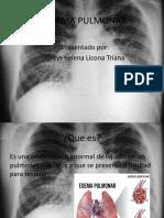 EDEMA PULMONAR.pptx