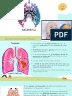 Neumonía Bacteriana