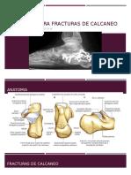 abordajes PARA FRACTURAS DE CALCANEO.pptx