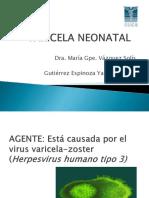 Varicela Neonatal