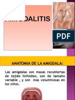Amigdalitis Exp