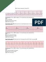 Cardiac Rhythms (3)