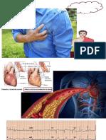 Fisiopatología angina.pptx