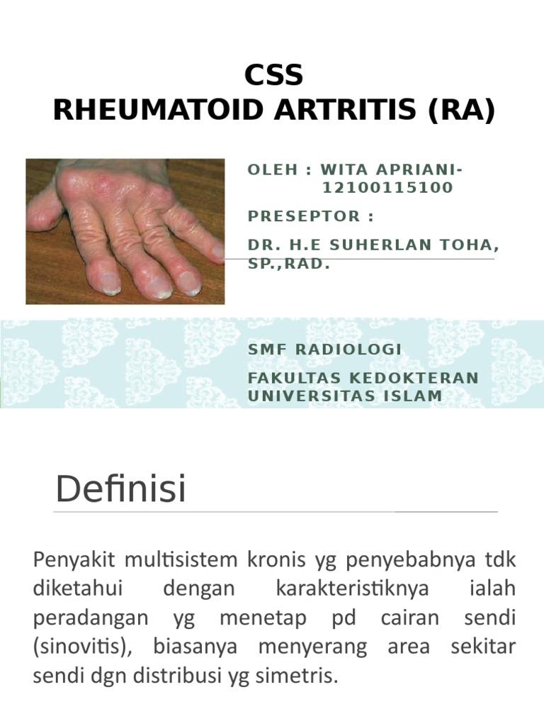 Akut artritisz és hogyan lehet kezelni Reuma (progresszív poliartritisz, reumatoid artritisz)