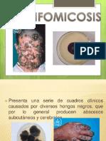 Feohifomicosis.pptx