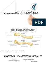 CLASIFICACION DE FRACTURA DE CLAVICULA.pptx