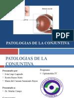 Patologias de La Conjuntiva(1)