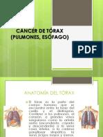 Cancer de Torax