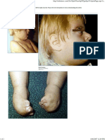 Aphert Syndrome.pdf