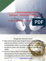 Stenosis Mitral