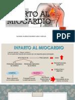 INFARTO DE MIOCARDIO.pptx