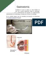 Gastrostomía