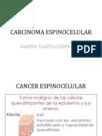 CARCINOMA ESPINOCELULAR.pptx