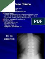 Caso Clinico tumor inflamatorio gastrico
