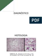 Microlitiasis Alveolar Dx