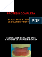 5protesistotalrodetesdeoclusionyplacasbase-130325172741-phpapp01