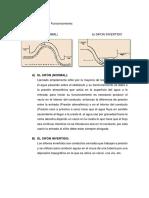 TIPOS DE SIFONES.docx