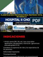 planificacion de protesis de rodilla Protesis de Rodilla