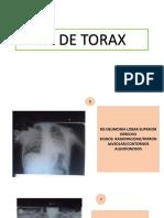 RX-ToRAX Placas Radiograficas