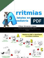 Arritmias Letales en Pediatria (PPTminimizer)