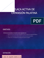 Placa Activa de Expansion Palatina