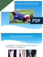 FRACTURAS Diapositivas - Copia