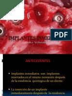 implantesinmediatospowerp-140813120010-phpapp01.pdf