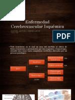 Enfermedad Cerebrovascular de tipo Isquémico