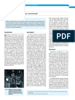 27_cr_kallman_syndrome.pdf