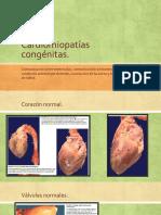 Cardiomiopatías congénitas