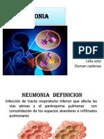 Neumonia Laminas