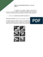 Técnicas de Estimulacion Propioceptiva y Tactil