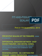 Preventive Sealing of the Fissures
