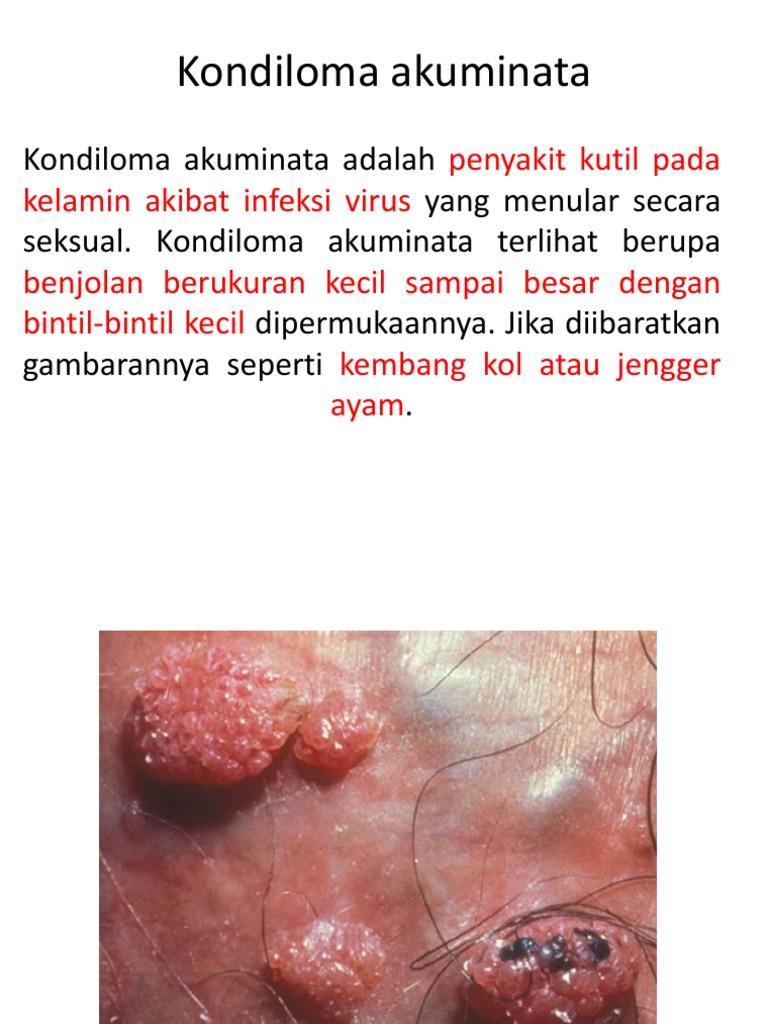 immun kondiloma in)